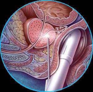 Питание после операции по удалении аденомы простаты